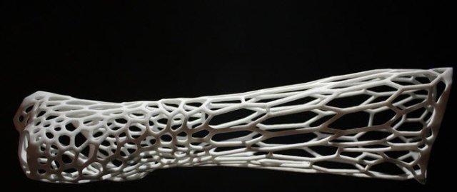 3d printed cast