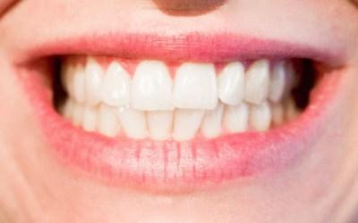 How To Whiten Teeth In Paint Net
