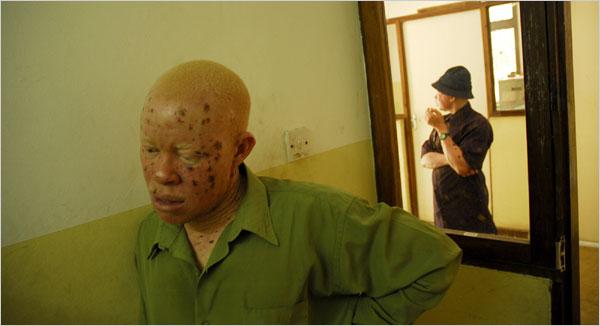 Albinos, Long Shunned, Face Threat in Tanzania