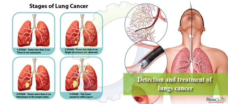 Detection and treatment of lungs cancer