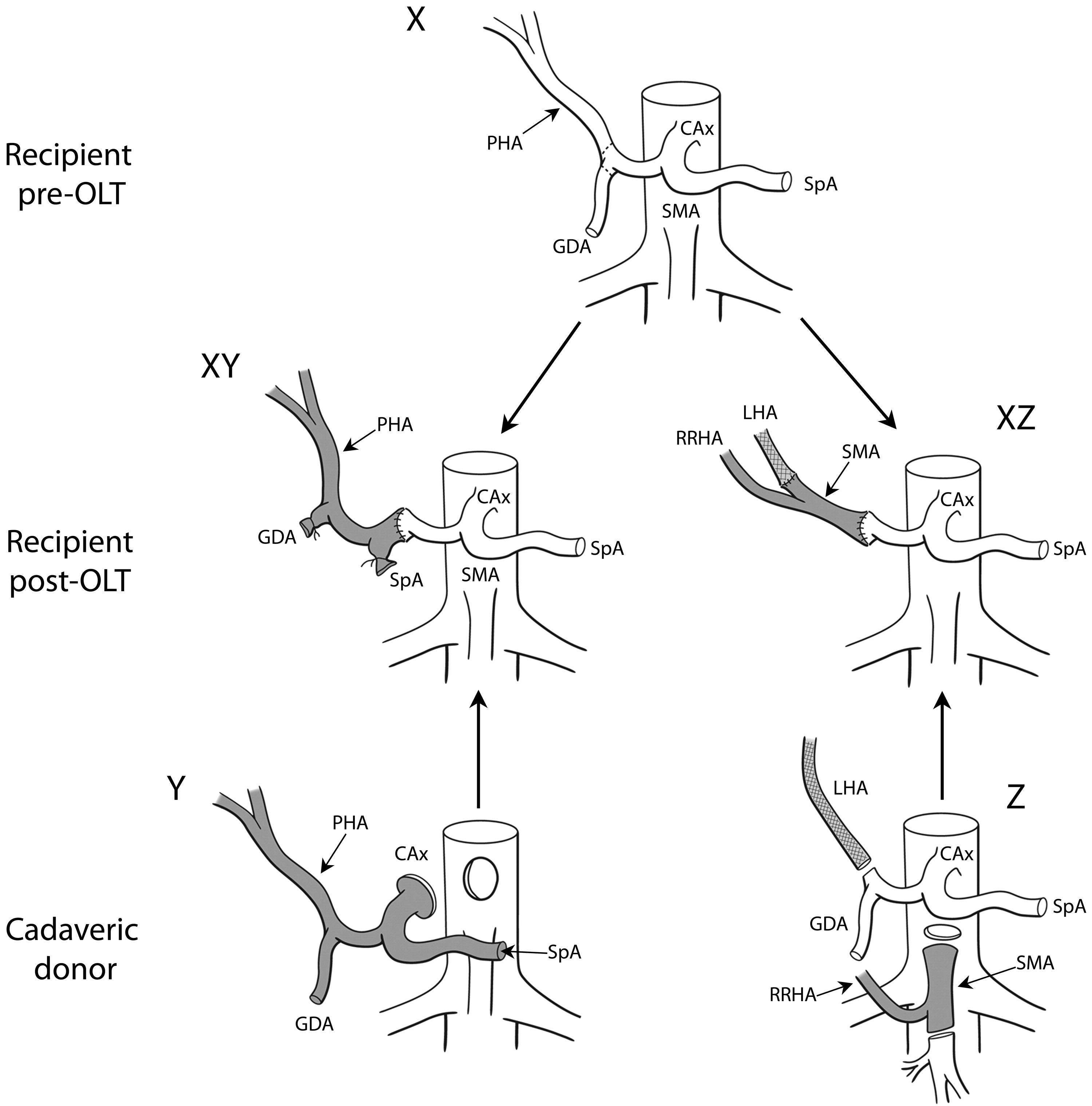 Postliver Transplantation Vascular And Biliary Surgical