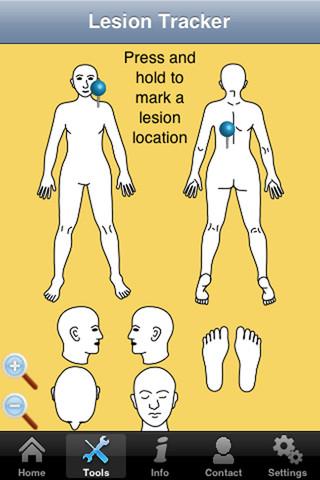 iOS: Aplicativo gratuito faz testes de câncer de pele em casa