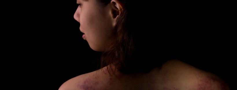 girl suffering from skin disease