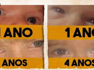 É possível nascer com os olhos pretos? 1