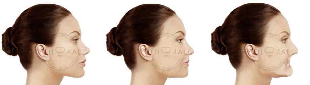 Pourquoi se faire poser des implants dentaires ? Arrêtez le risque de résorption osseuse de la face cachée