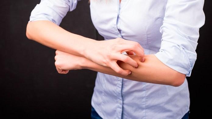Se caracteriza principalmente por piel seca, prurito intenso y lesiones cutáneas inflamatorias localizados (eccemas).