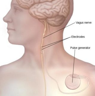 The implant is placed under the skin to stimulate the vagus nerve