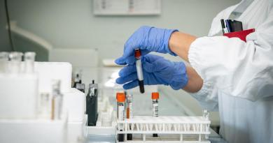 Anemia falciforme, ok Ue a prima terapia che previene 'crisi dolorose'