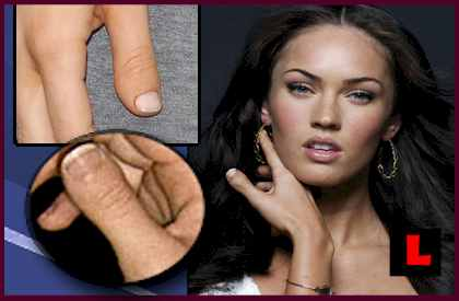 Megan Fox has a clubbed thumb (BDD = brachydactyly - type D).