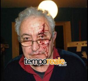 Mario Piccolino subito dopo l'aggressione del febbraio 2009
