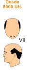 VII vertex