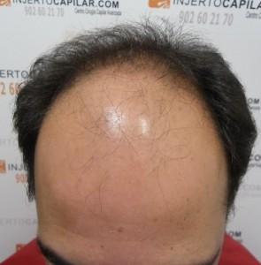 https://www.tenerpelo.com/Preoperatorio de un injerto capilar/antes de... 9-11-2011 (9)