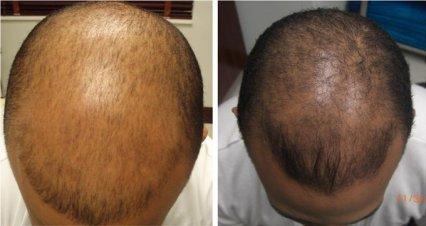 carboxi terapia tratando alopecia