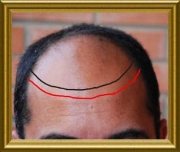Primera linea capilar