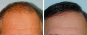 r hair-restoration-ba