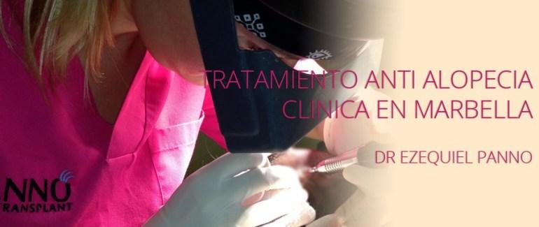 tratamiento-anti-alopecia-en-clinica-dr-panno-marbella-900x380