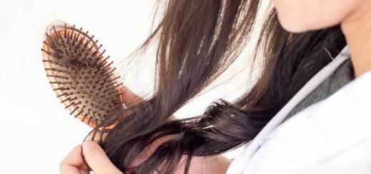 Alopecia-en-la-mujer - Hair loss woman
