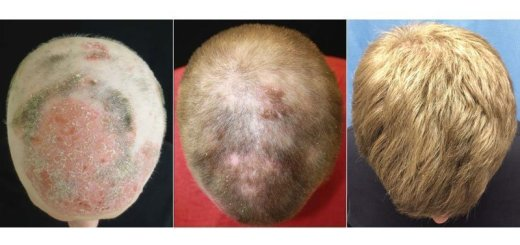 Investigación contra la alopecia areata