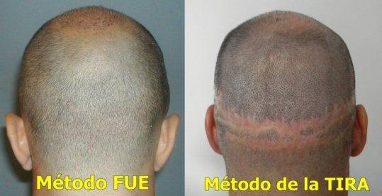 FUE-Vs-FUE-1024x525