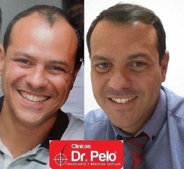 Trasplante Dr. Pelo