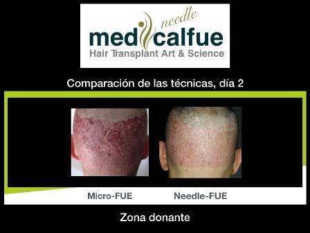 Comparativa Needle y FUE