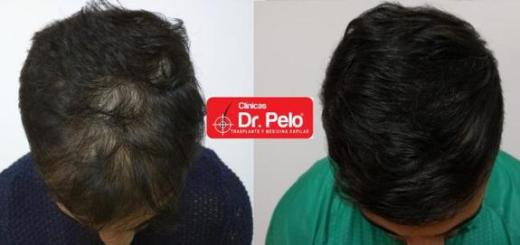 FUE Dr. Pelo