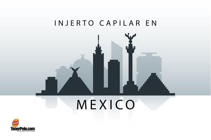 Injerto-Capilar-en-Mexico
