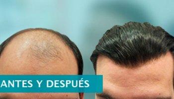 Hair Solution - Cosmetica Capilar