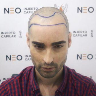 Injerto Capilar de Miguel concursante Gran Hermano