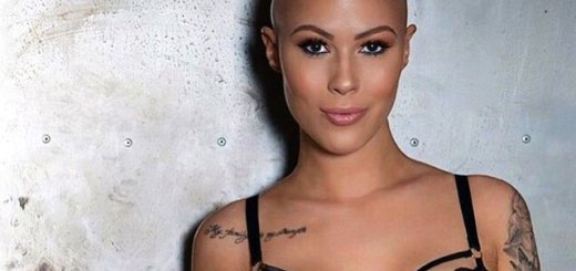 Therese-Hansson---Modelo-gracias-a-la-alopecia
