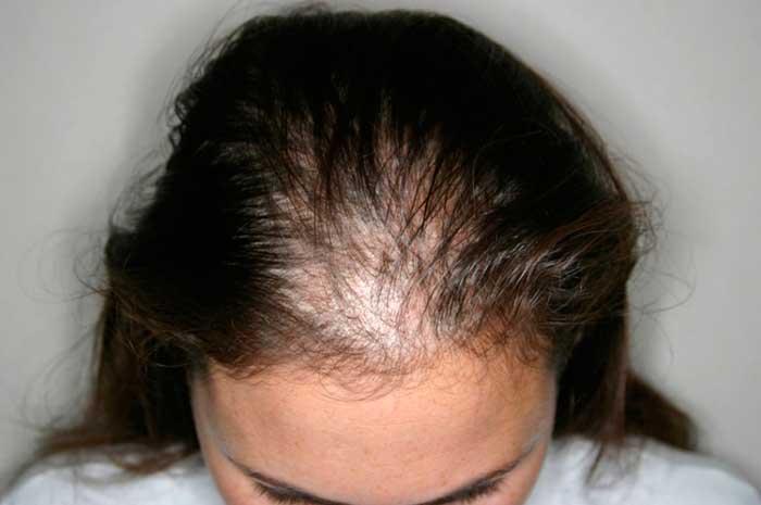 Alopecia-difusa-Mujer