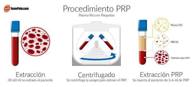 Plasma Hair - Procedimiento-PRP - Plasma rico en plaquetas