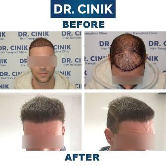 La solución para la caída de tu cabello, desde Marbella