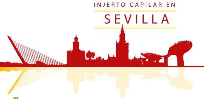 Injerto Capilar Sevilla