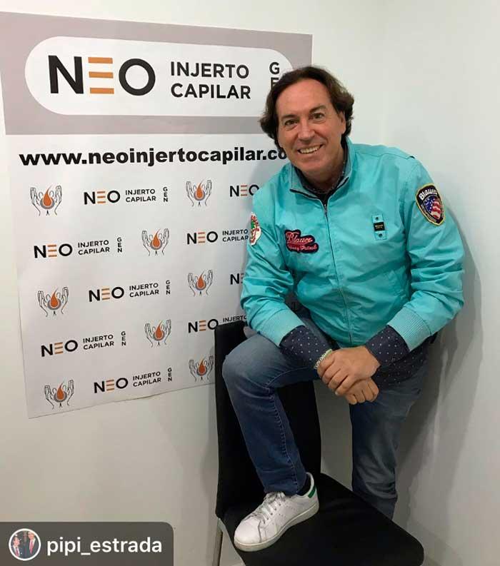 El implante capilar de Pipi Estrada - Pipi-Estrada-en-Neo-Injerto-Capilar