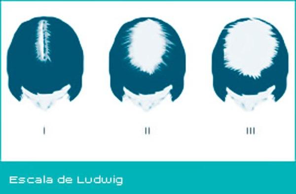 Escala de Ludwig - Alopecia en la mujer