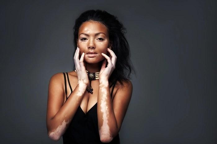 Chica-con-vitiligo---Tenerpelo