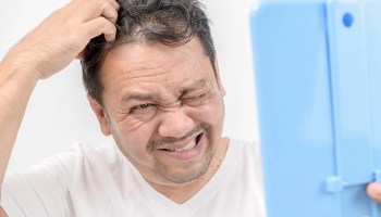 Dermatitis seborreica -Trastornos de la piel