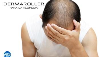 Dermaroller para la alopecia