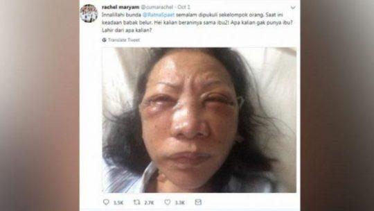 Cuitan Rachel Maryam terkait dugaan penganiayaan terhadap aktivis Ratna Sarumpaet. twitter.com/cumarachel