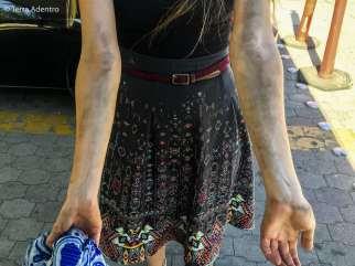 Resultado desta fronteira desastrosa no México. Com os braços sujos por ficar tanto tempo debaixo do carro.