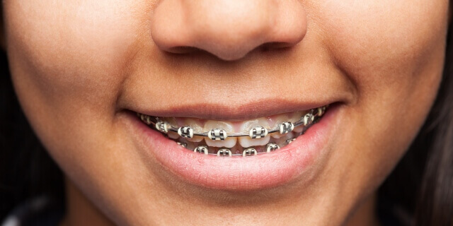 Brackets: ¿Qué son?