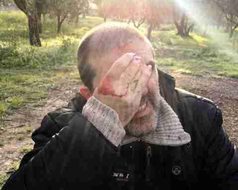 Attivista No Tap ferito