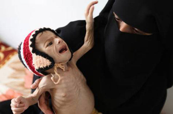 Saudi Mercenaries and the Starvation of Yemen