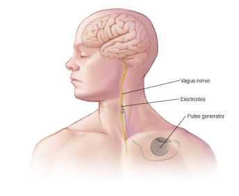 vagal nerve stimulation neurology associates