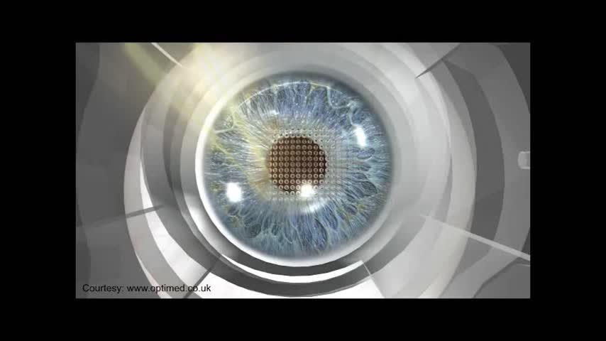 Health Cast: Kamra Eye Surgery