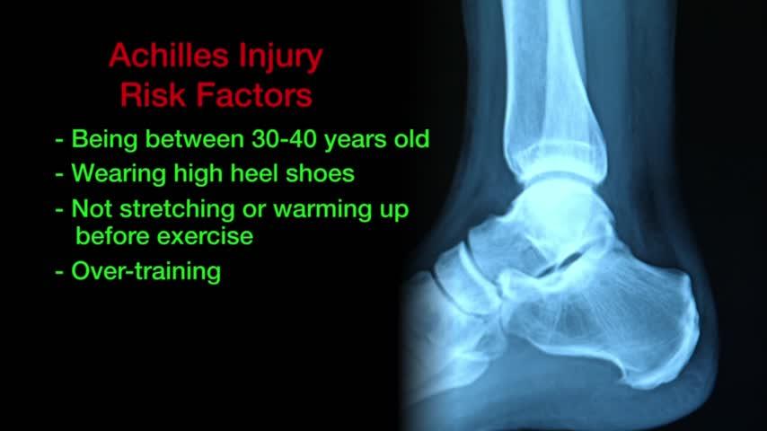 Health Cast- Achilles Tendon Injuries_50886241