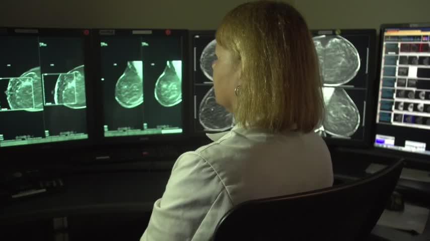 Health Cast- 3D Mammogram_47603135