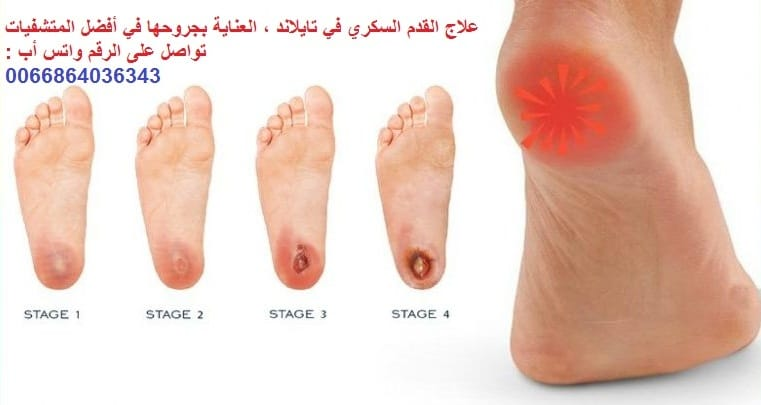 علاج القدم السكري في تايلاند