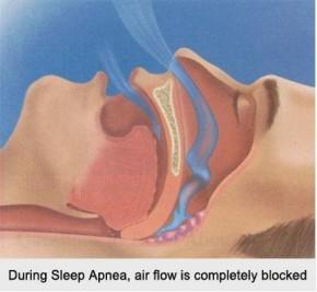 sleep-apnea-1